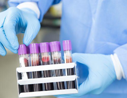 USM colabora con Hospital Carlos van Buren para el diagnóstico de casos COVID-19